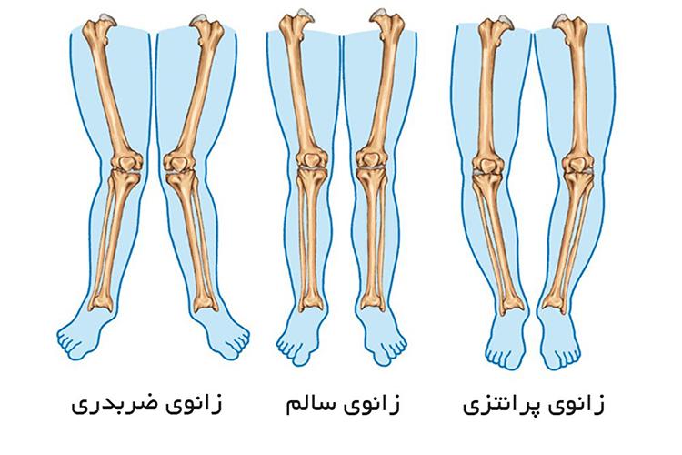 تشخیص پای ضربدری